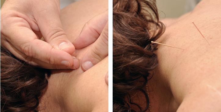 Detalle de las agujas de acero usadas para la acupuntura