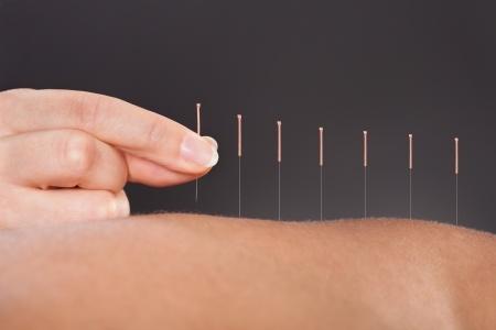 acupuntura, no se trata de tener fe