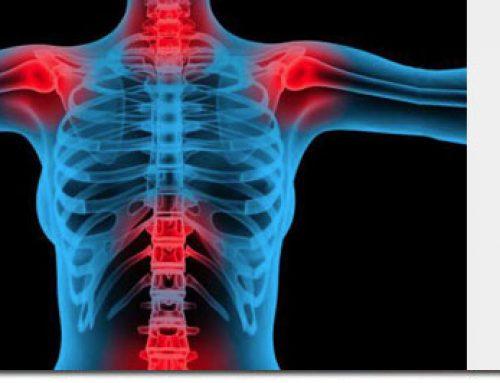Fibromialgia. ¿Motivo para la declarar la invalidez permanente absoluta?