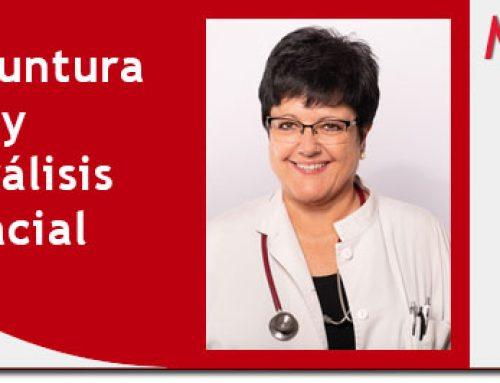 Acupuntura y parálisis facial